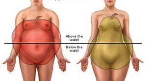 Az alma típusú elhízás