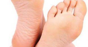 Feet-Cure