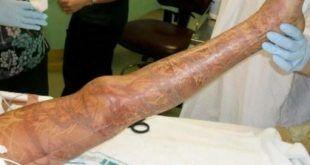 Kockamedúza-okozta-sérülés