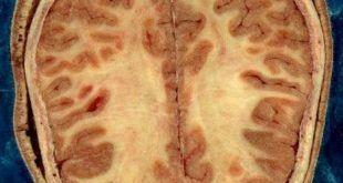 myatrophiás lateralsclerosis
