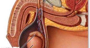Prostatit minden évben prostatitis következmények a kezelés után