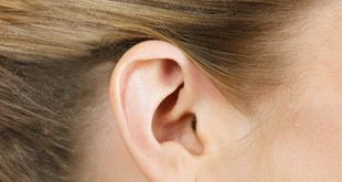 Prominent-Ear-Correction